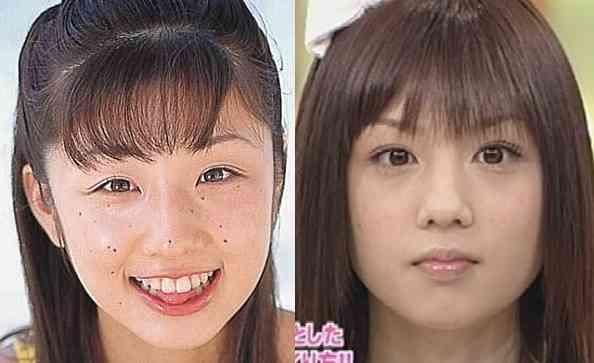 整形手術を受けた彼女と結婚したら。。。